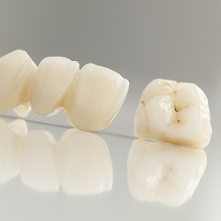 Crowns and Bridges, Dental Clinic in Guelph, Implants