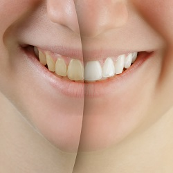 tooth whitening treatments